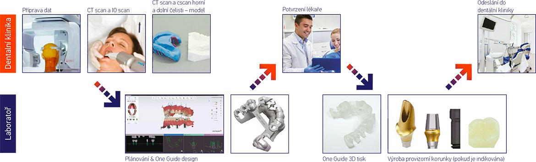 Pracovní postup plánování a zhotovení implantační šablony