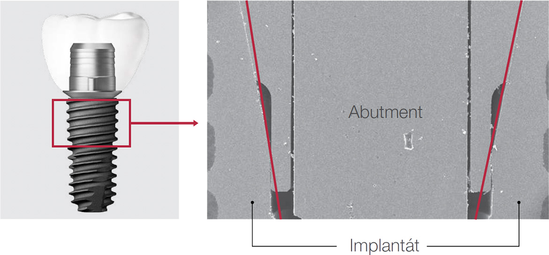 Optimální kompatibilita Osstem TS Link Abutment
